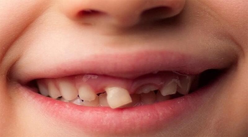 Nguyên nhân gây răng thưa do răng sữa mọc sai vị trí ở trẻ