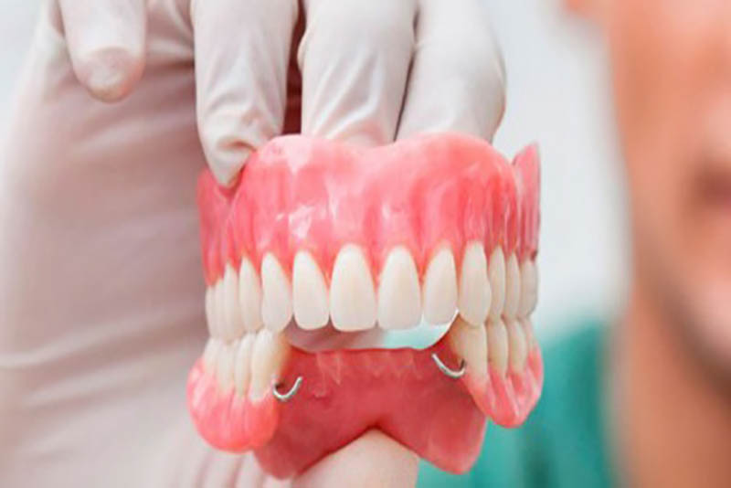 Răng tháo lắp là gì? Có nên dùng răng tháo lắp không?