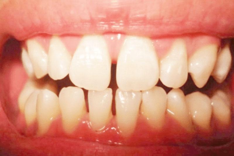Răng thưa là như thế nào