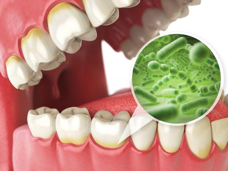 Vi khuẩn sẽ tấn công mảng bám tạo axit ăn mòn răng