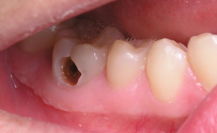 Vi khuẩn sẽ tấn công men răng, ngà răng và sau đó là tủy răng