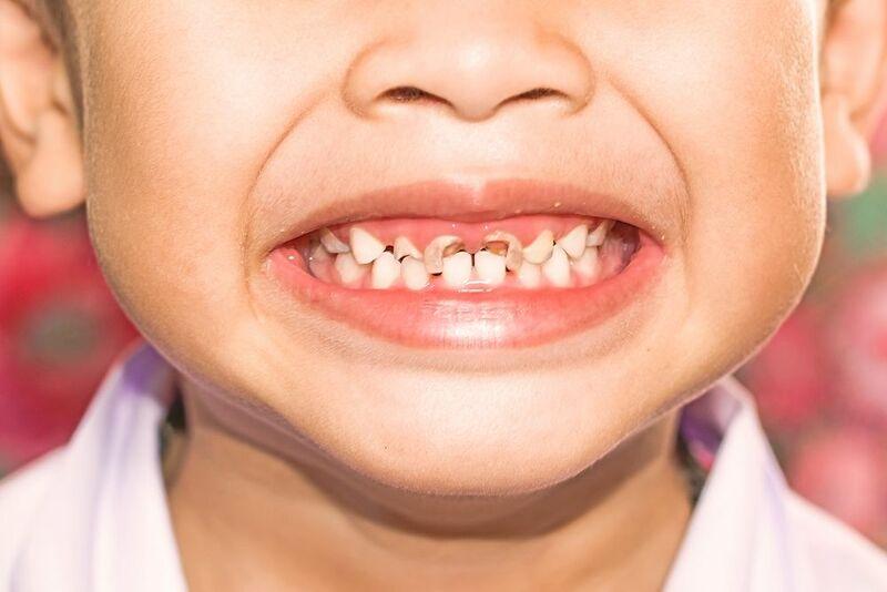Sâu răng ở trẻ em: Hãy điều trị kịp thời cho con!
