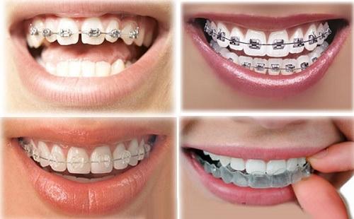 Niêng răng