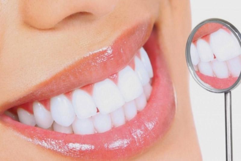 Tẩy trắng răng bằng Laser Zoom II khác Laser thường như thế nào?