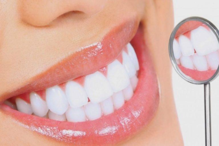 Không nên tẩy trắng răng ngay sau khi lấy cao răng