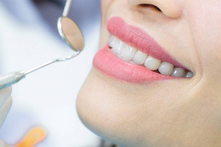 Lấy cao răng có ảnh hưởng tới sức khỏe hay không?