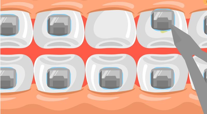 Sau khi răng đã được đưa về đúng vị trí, các nha sĩ sẽ tiến hành tháo mắc cài để hoàn tất quá trình niềng răng