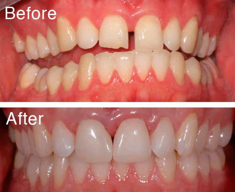 """Trám răng có thể """"hàn liền"""" các vết hở kém duyên giữa các răng"""