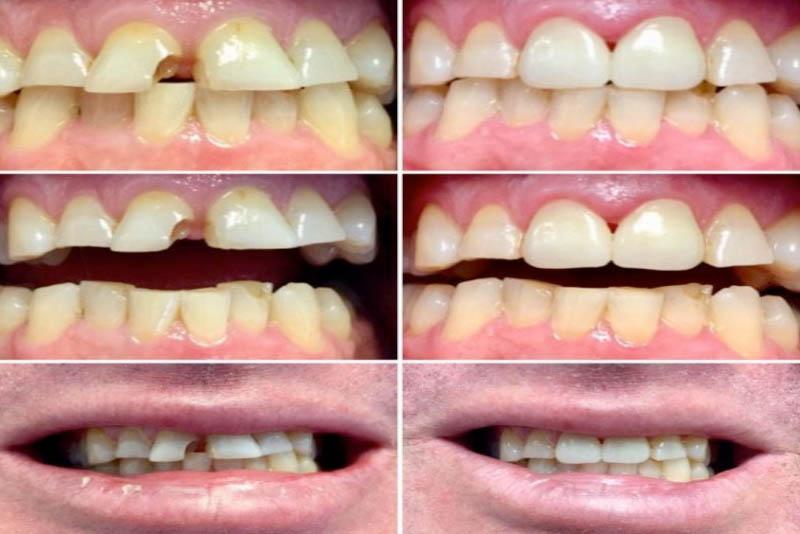 Trám răng thẩm mỹ là gì? Những điều bạn cần biết về trám răng thẩm mỹ