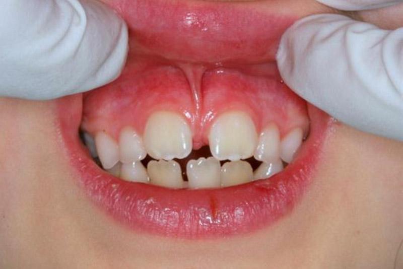 Răng thưa là nguyên nhân gây ra các bệnh về răng