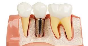Trồng Implant khôi phục răng cấm, tránh tiêu xương, tụt nướu