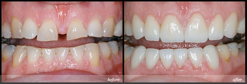 Tình trạng răng thưa có thể do bẩm sinh