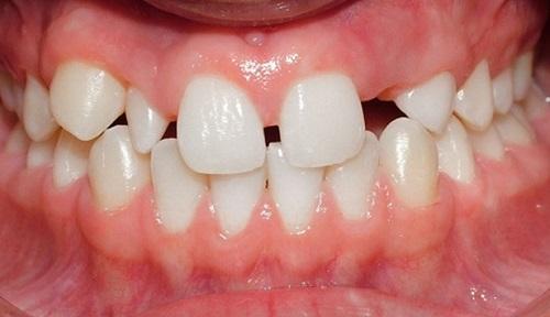 Trồng răng sứ răng mọc thưa
