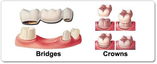 Kỹ thuật trồng răng sứ kim loại
