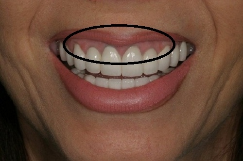 Răng sứ kim loại sẽ gây ra hiện tượng đen viền nướu