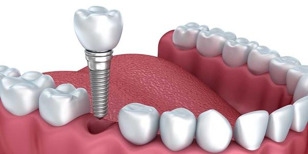 Trồng răng sứ trên Implant loại sứ nào yốt nhất ?