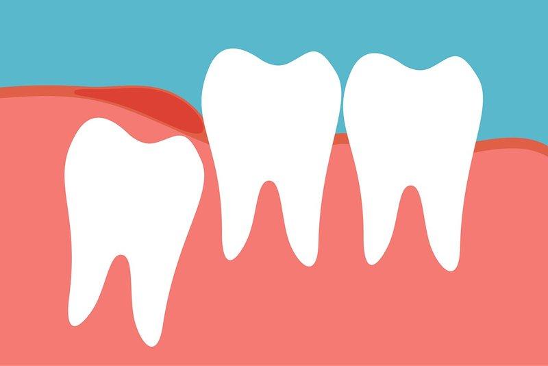 Trường hợp nào không cần thiết phải loại bỏ răng khôn?