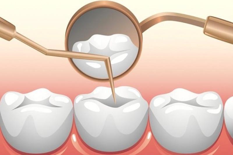 Tủy răng là gì? Viêm tủy răng có nguy hiểm không?