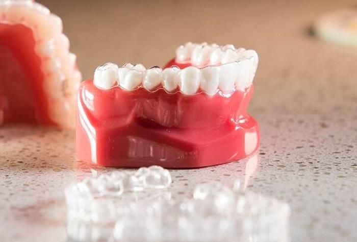 Ưu điểm của niềng răng trong suốt là gì?