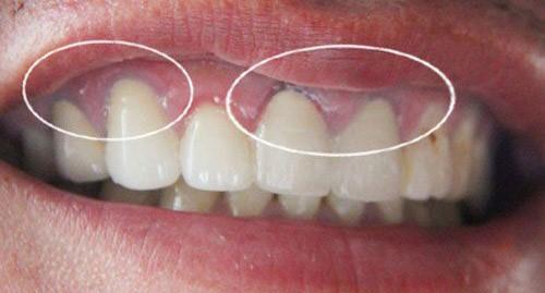 Vì sao viền nướu bị đen sau khi bọc răng sứ?