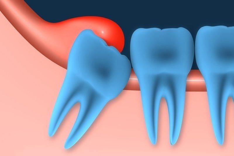 Tình trạng viêm nướu do răng khôn