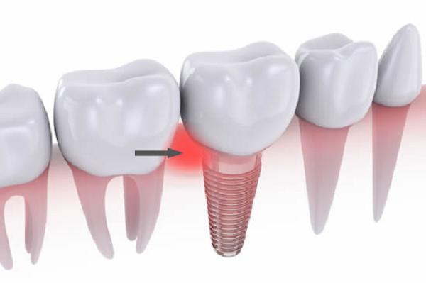 Viêm quanh Implant