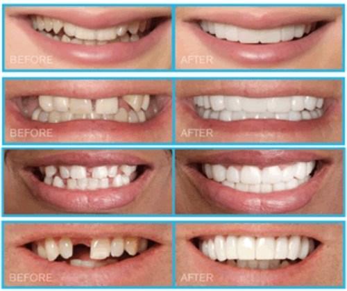 Trồng răng sứ kim loại có thể áp dụng cho nhiều trường hợp