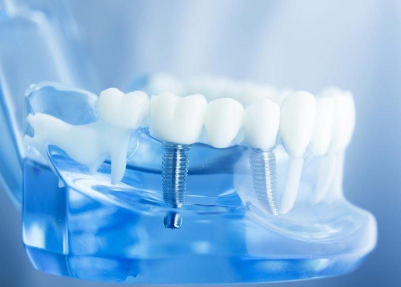 Vị trí cấy ghép cũng sẽ ảnh hưởng đến việc trồng răng implant có đau không